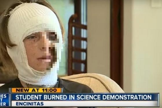 Неудачный научный эксперимент на уроке сжег школьнику лицо