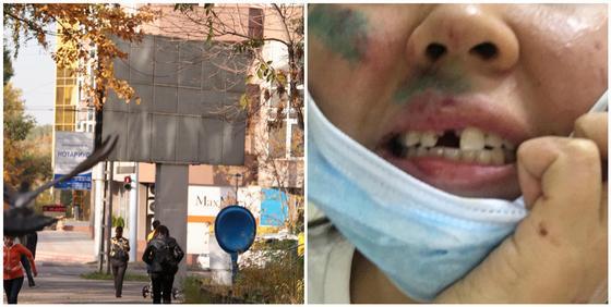 """""""Лицо истекало кровью"""": девушка заявила, что ее избил преподаватель университета """"Туран"""""""