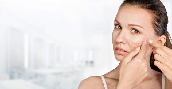 Что такое акне: причины и лечение