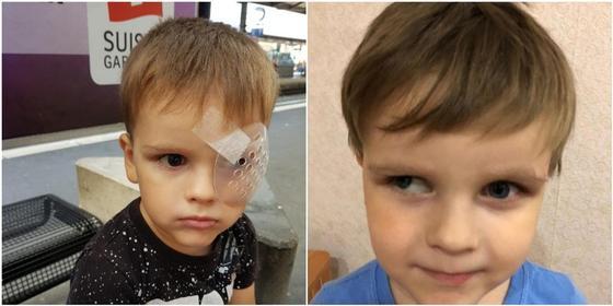 3-летнему ребенку из Акмолинской области могут удалить единственный глаз (фото)