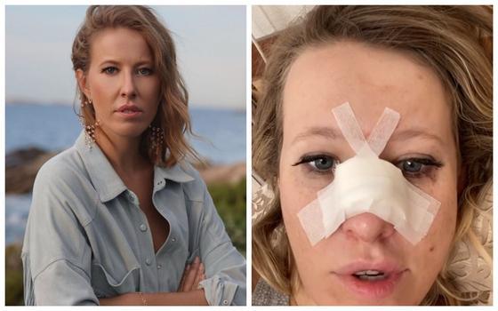 Ксении Собчак срочно провели операцию после перелома носа (видео)