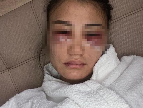 """""""Не могу молчать"""" : алматинка заявила, что год терпит побои от парня и боится за свою жизнь"""