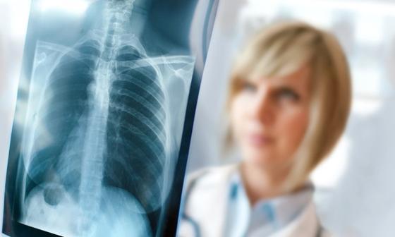 В Минздраве объяснили, как воспитатель с диагнозом «открытый туберкулез» попала в детский сад