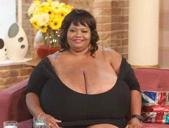 Бюст мечты: женщины с такой большой грудью, что её просто не унесешь