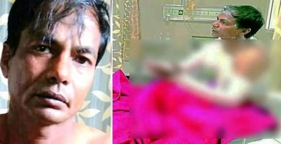Девушка отказалась выйти замуж за парня и он плеснул ей в лицо кислоту (фото)