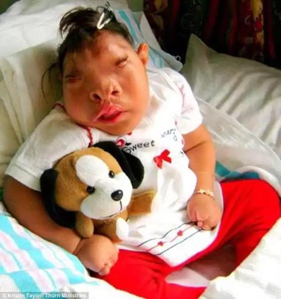 Родившаяся без части мозга девочка умерла в 10 лет