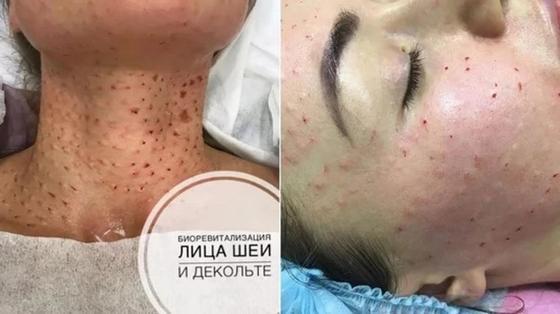 Фото: instagram.com - kosmetolog_astana_elmira и elima.kosmetolog