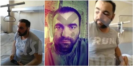 Кокорин и Мамаев избили человека за два часа до нападения на чиновника