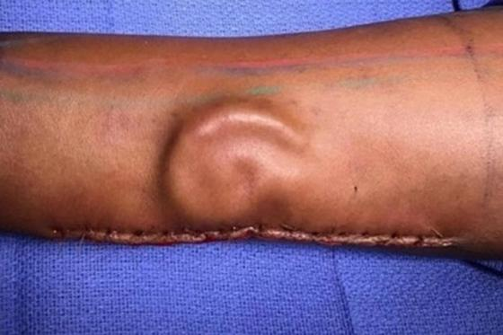 Медики вырастили новое ухо на руке женщины (фото)