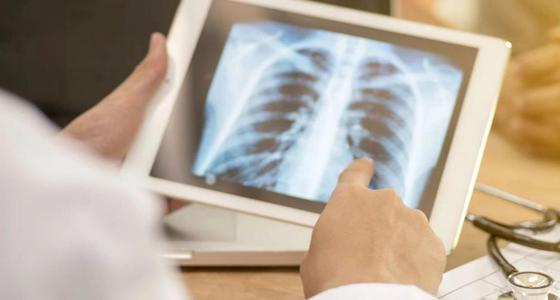 Открытую форму туберкулеза выявили у физрука школы в Уральске