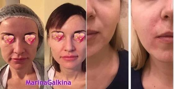 Фото: instagram.com - dr_galkina_cosmetolog и dr.aida_battalova