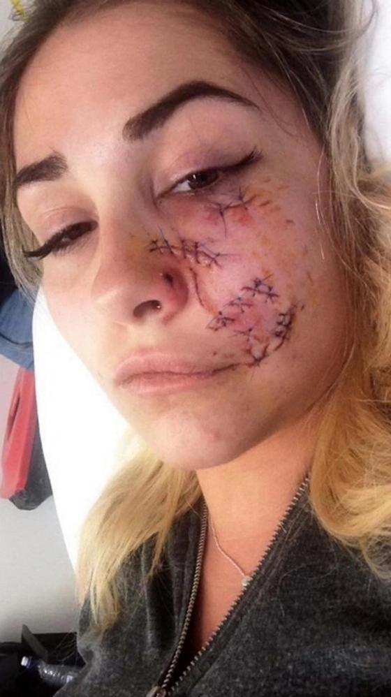 Питбуль изуродовал лицо 23-летней модели