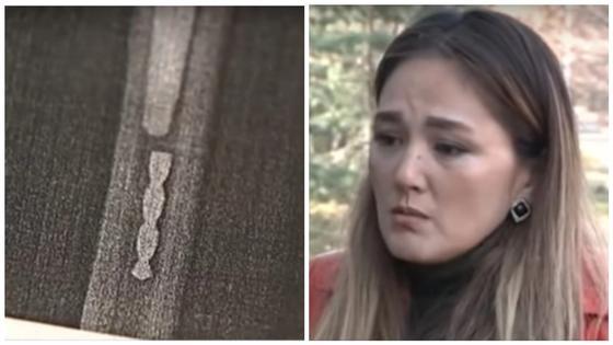 Кусок сверла в теле пациентки оставили после операции в больнице Алматы
