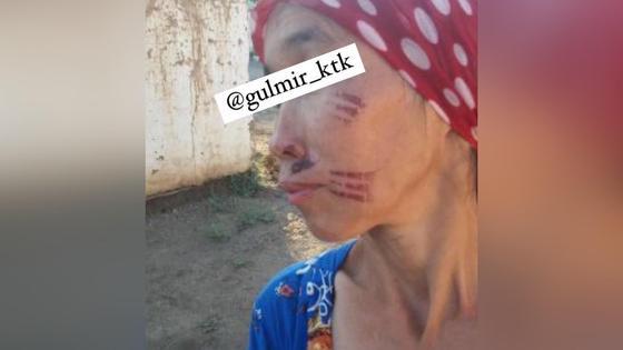 """Женщина с """"клеймом"""" в Туркестанской области"""