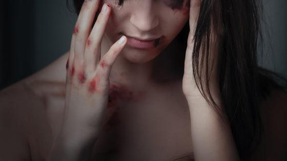 Девушка с кровоподтеками на руках