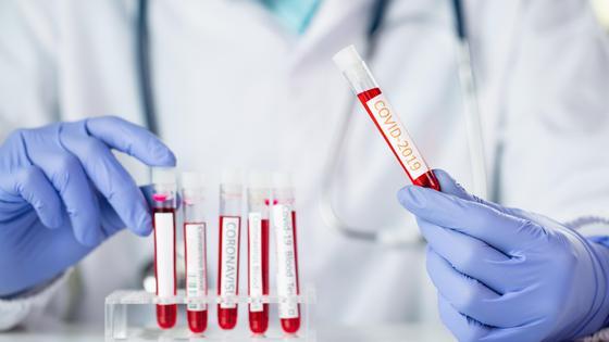 Доктор держит в руке пробирку с пробой на вирус