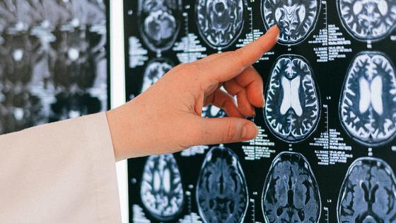Врач указывает на участок на томографии головного мозга