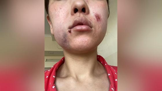 Бывший муж избил женщину в Туркестанской области